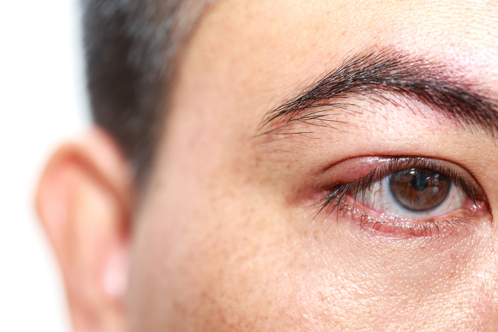 Man With Potential Case Of Pink Eye